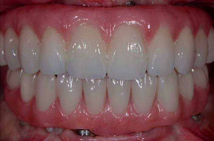 Before After - Dental Crowns, Porcelain Veneers, Dental Before and after photos of veneers