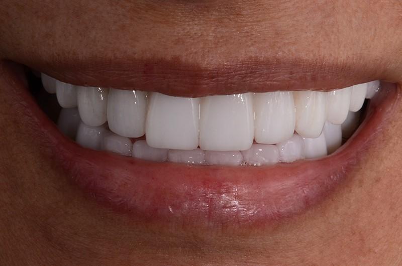 smile-after.jpg