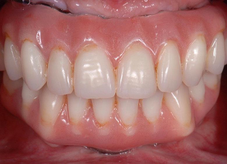 Titanium and Acrylic Resin Teeth