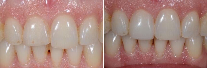 Dental Bonding | ArtLab Dentistry