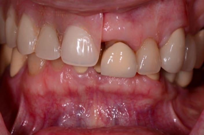 Implant rehab before