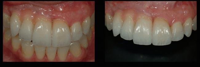 mandy-upper-reconstruction