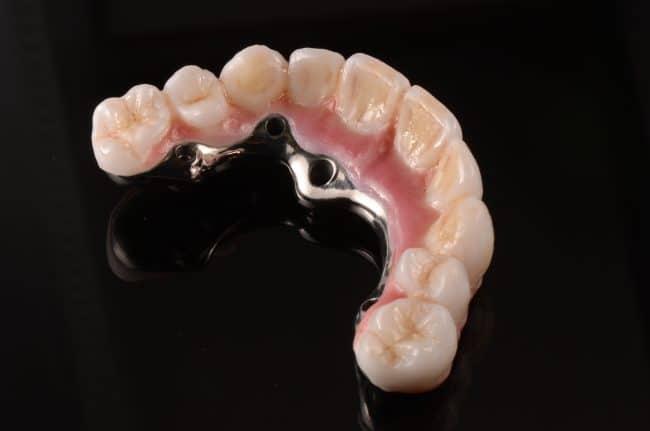 victor-teeth