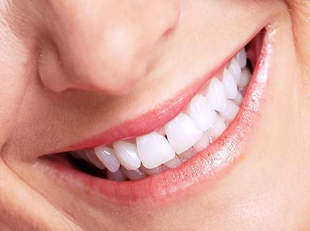 All On Four Dental Implants |