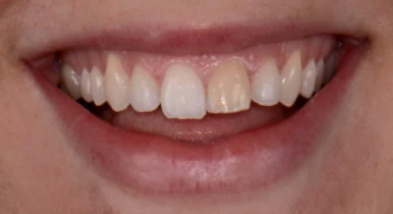 perfect smile veneers отзывы в контакте