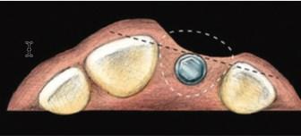A deficient alveolar crest