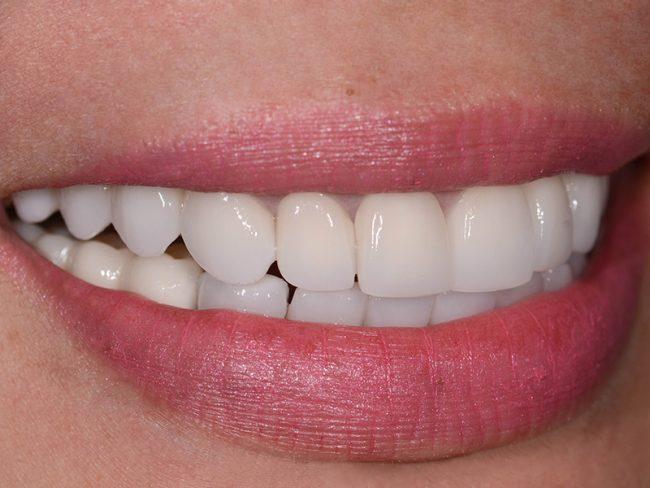 Beautiful smile and teeth of Gloria