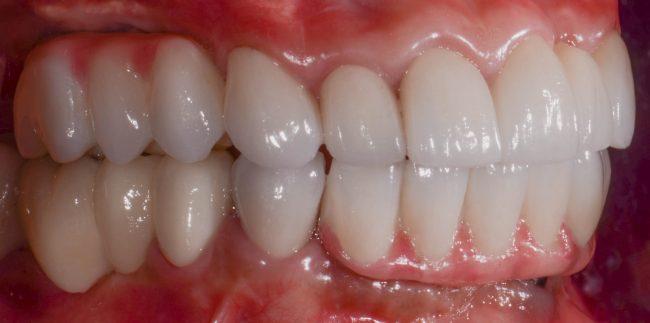 Gloria's side view of new teeth