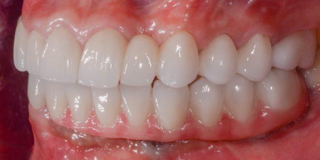 Gloria's new teeth - side view