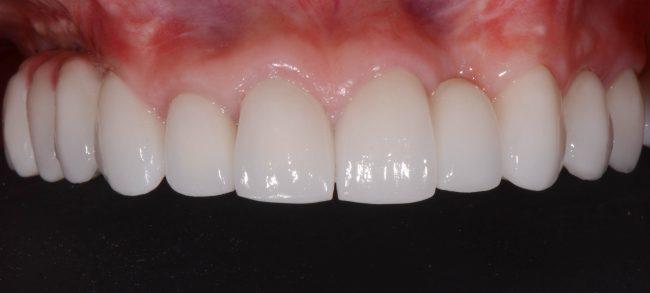 Gloria's new top teeth