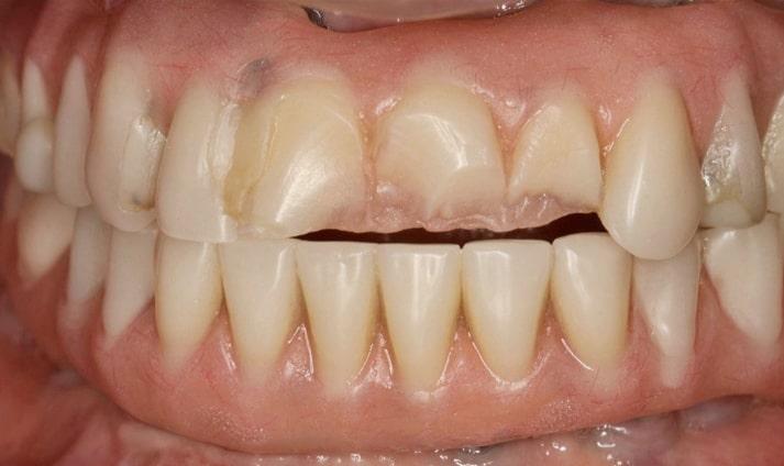 Dental Implants Gone Wrong #2