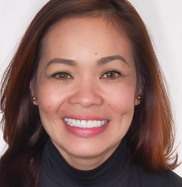 Artlab Dentistry patient - Gloria -after dental implants