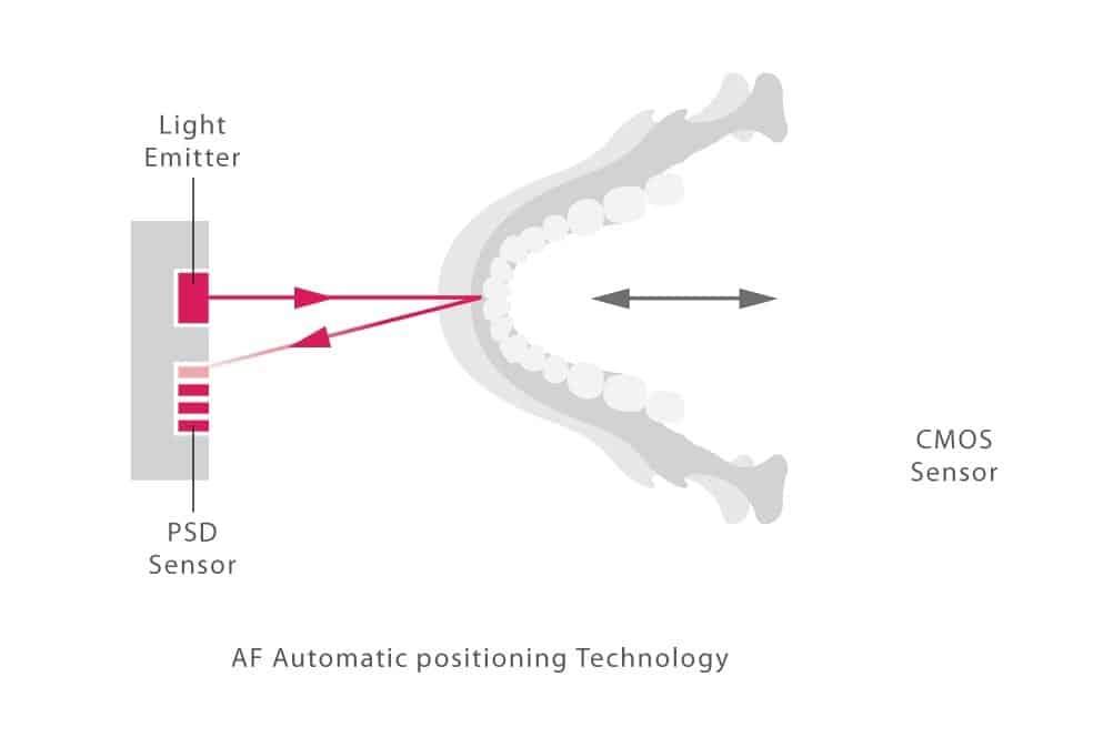 Autofocus feature in the Morita 3D R100 CT Scanner
