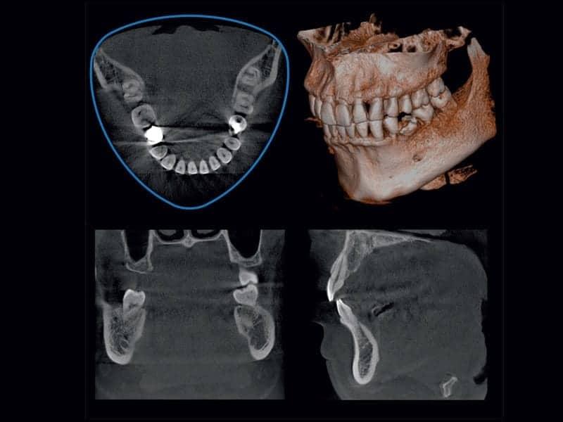 CT Scanner for ArtLab Dentistry
