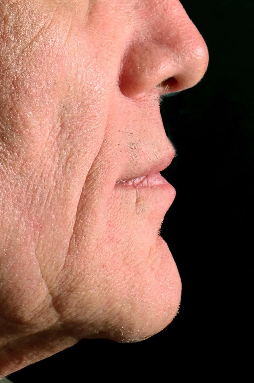 ArtLab Dentistry patient after all-on-4 dental implant restoration