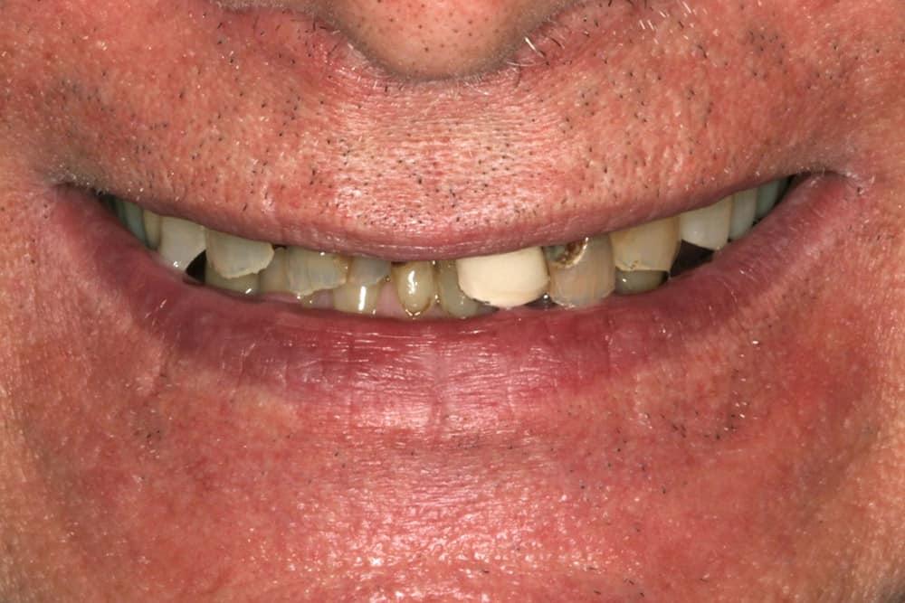 ArtLab Dentistry patient before all-on-4 dental implant restorations