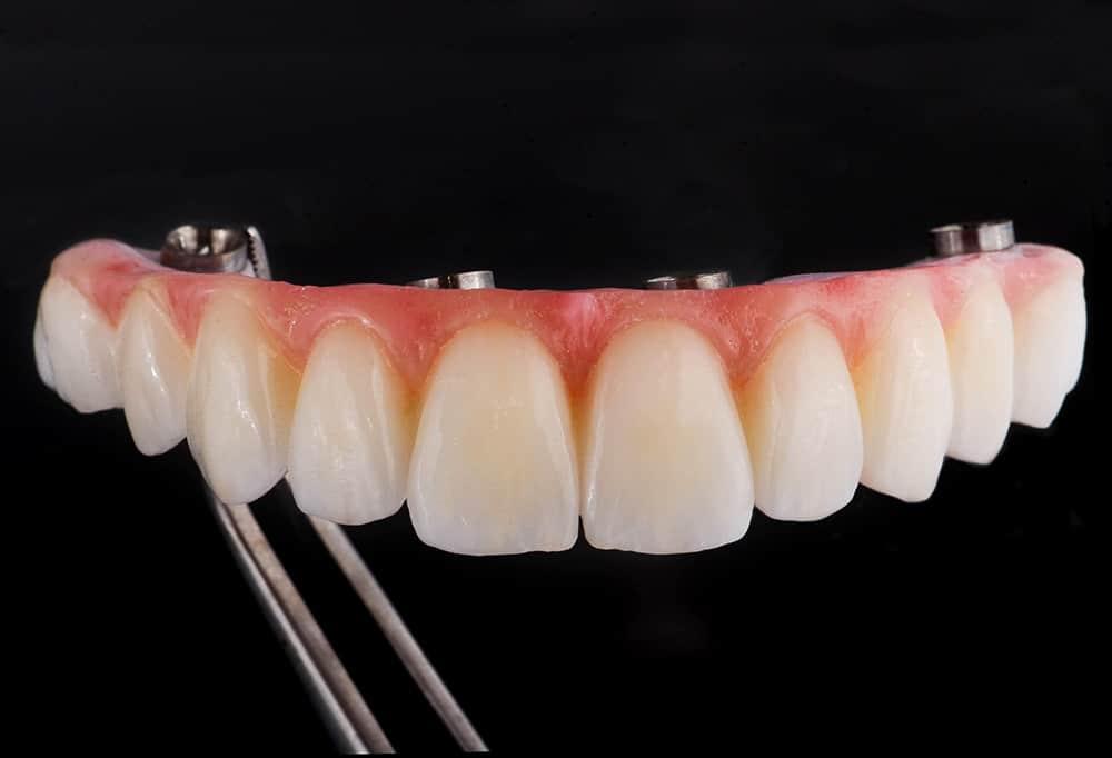 ArtLab Dentistry patient prosthesis after all-on-4 dental implant restorations