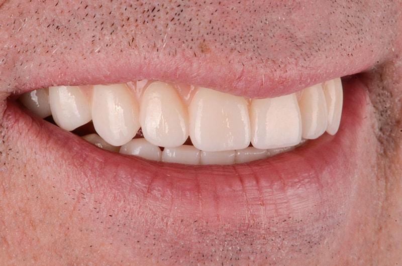 John's smile after all-on-4 dental implants at ArtLab Dentistry