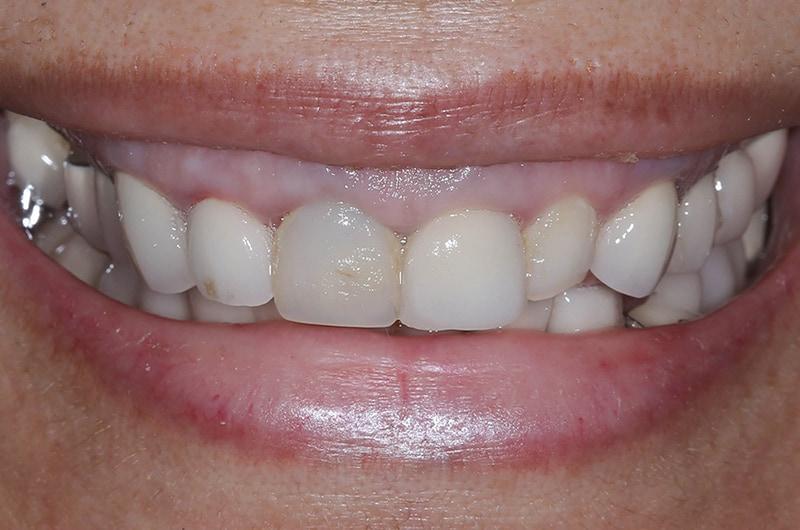 mary-before-smile-800-530.jpg